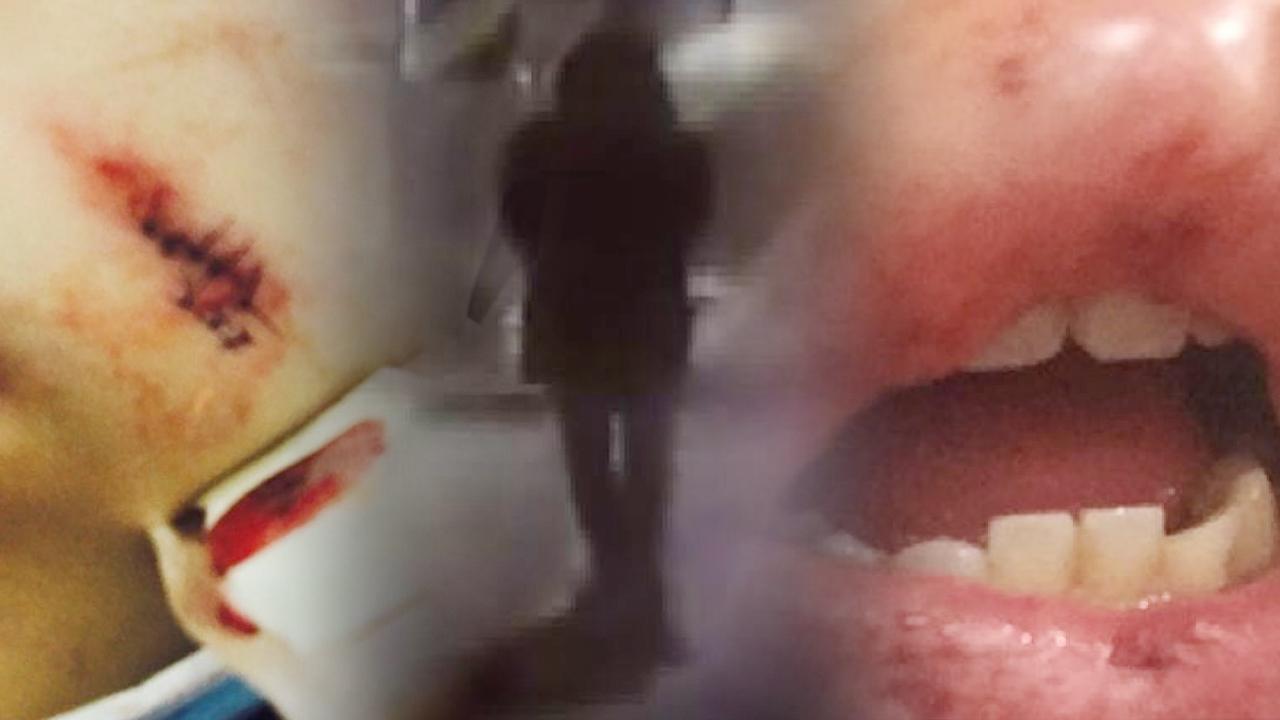 [348회] 도심주택가 돌덩이 폭행사건, 그는 왜 두 여성을 공격했나