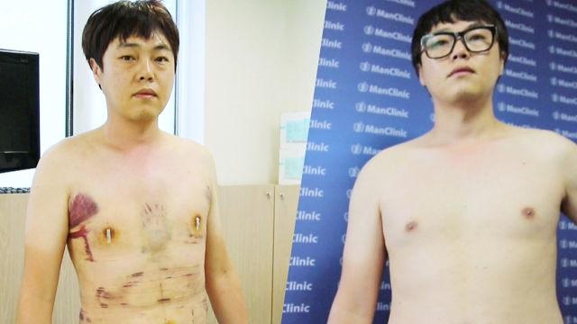 뱃살을 없애기 위해 '몸 성형'에 나선 40대 남성